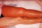 Trombosebeen
